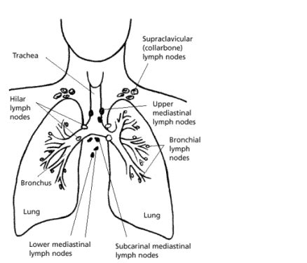 Non small cell lung cancer essay
